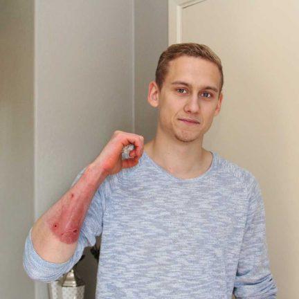 Ung man skadad i arbetsplatsolycka